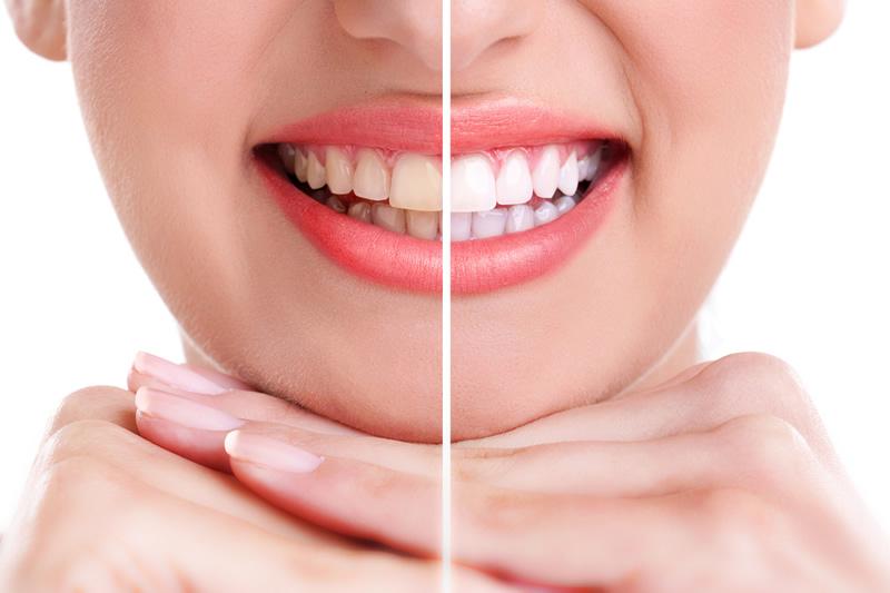Clínica Dental Rovaletti Blanqueamiento Dental Fuengirola Mijas