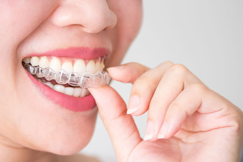 Clínica de ortodoncia Fuengirola, Luciana Rovaletti
