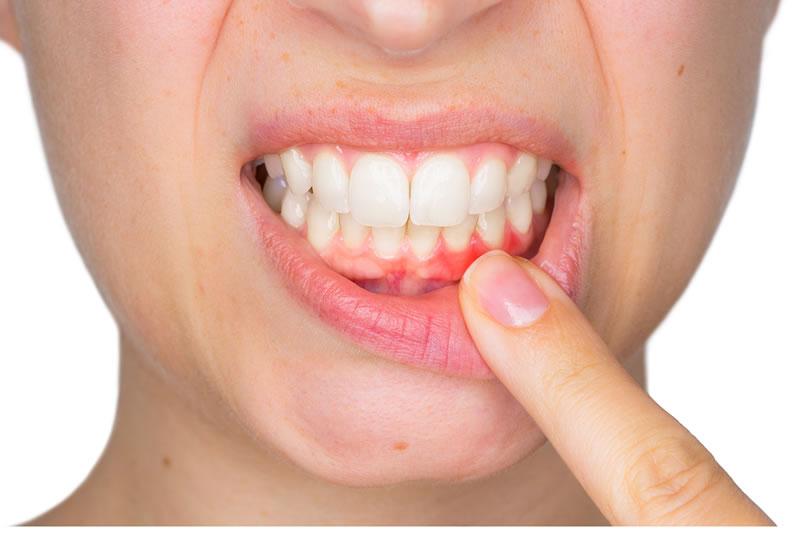 Clínica Periodoncia Fuengirola, Clínica dental Rovaletti