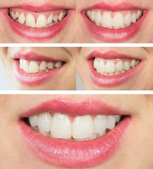 Clínica Dental Rovaletti Fuengirola Mijas Estética Dental