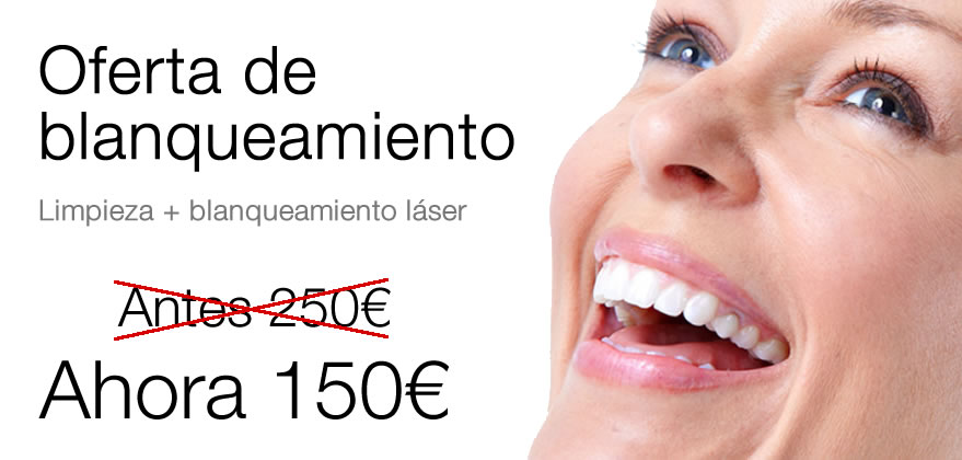 Oferta Blanqueamiento Dental Fuengirola