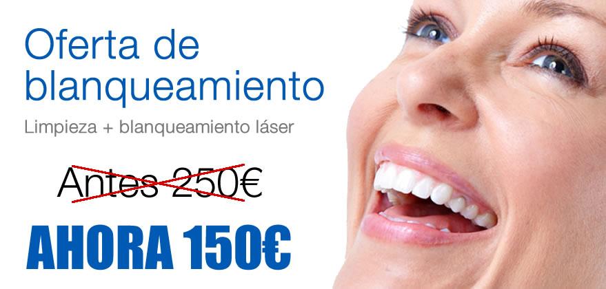 Ofertas de blanqueamiento dental en Fuengirola